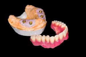 who offers the best dentures massapequa?