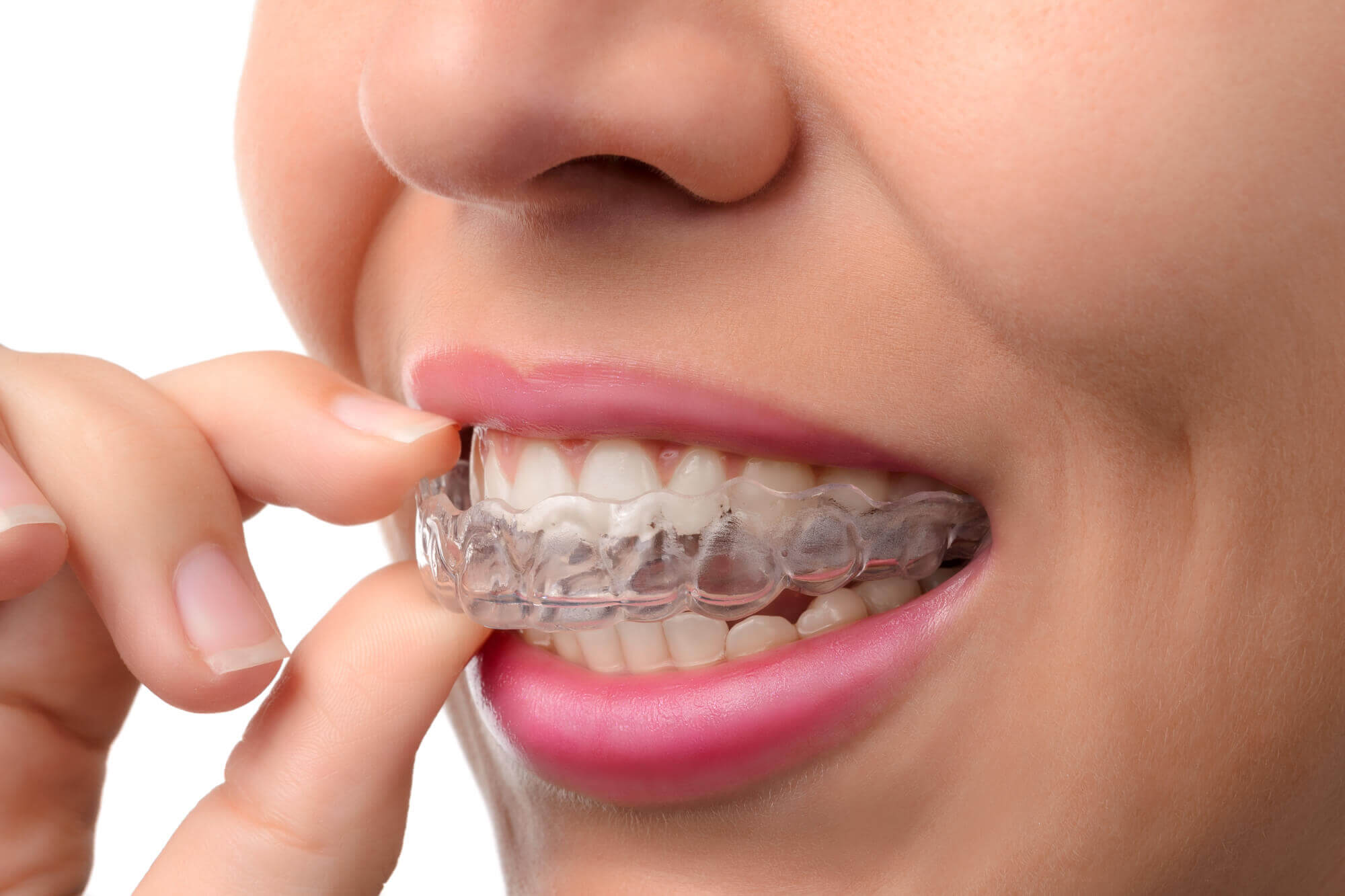 fix crooked teeth greater long island dental
