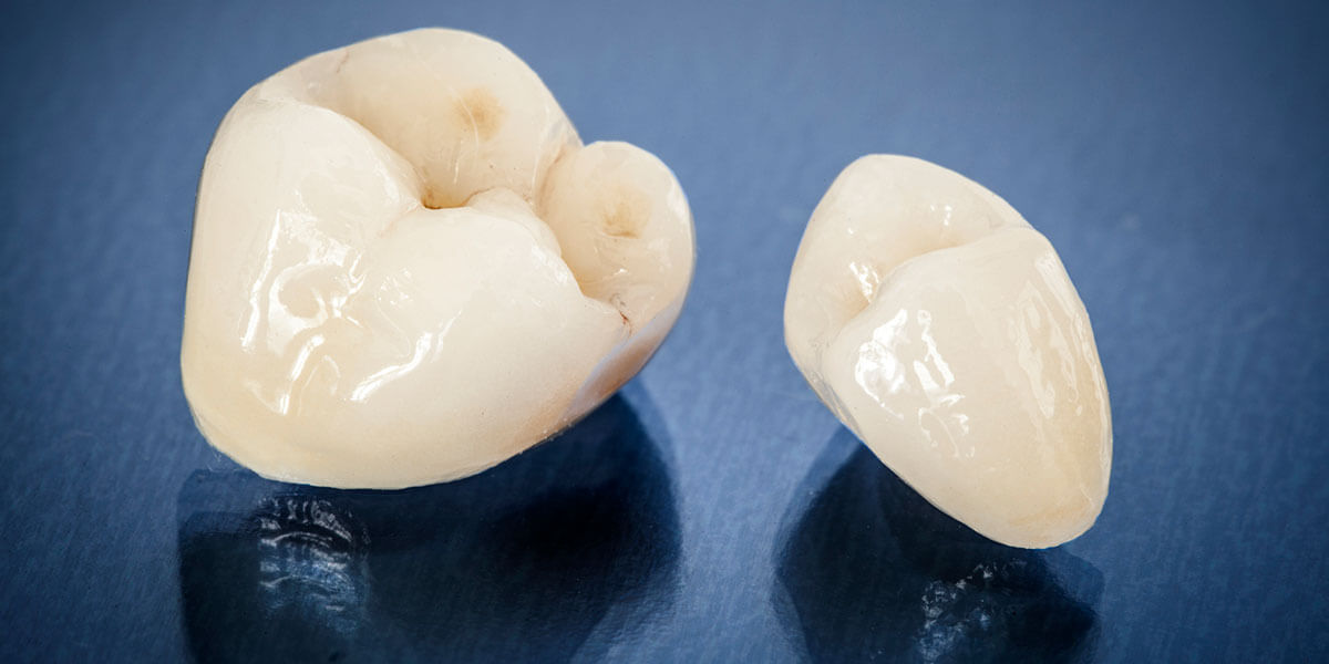 Examples of two types of Crowns
