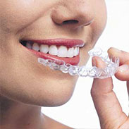 Invisalign Appliance