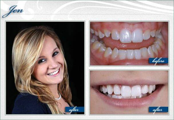 dental bridges smile gallery massapequa NY greater long island dental